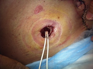 New stoma: day 4 post op